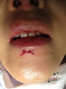 This laceration doesn't look like much on first glance.