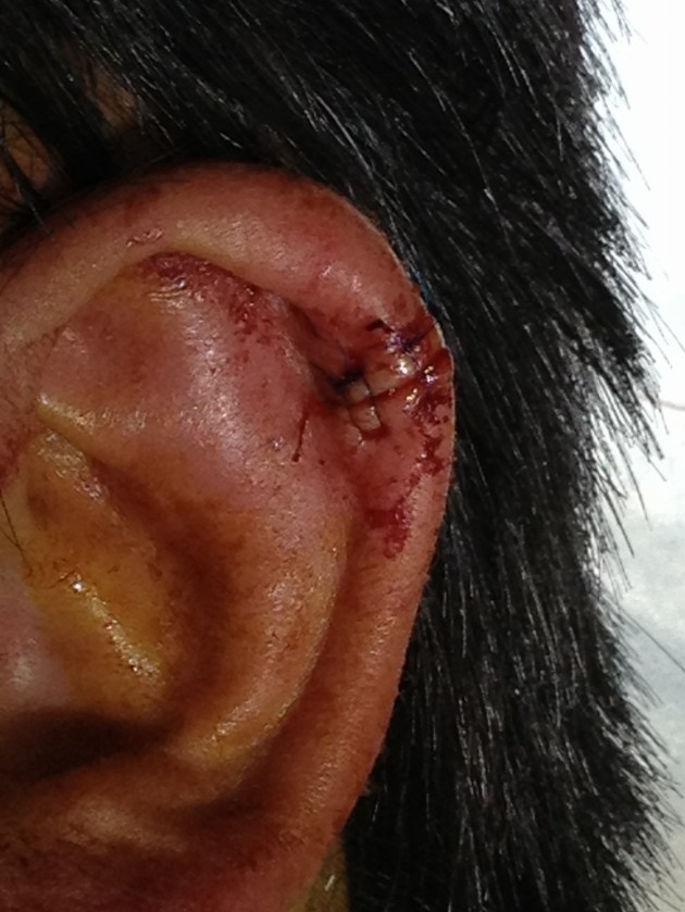 Small auricular hematoma formation after repair of an ear laceration.
