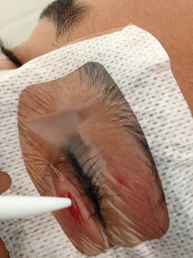 "The wound can now be safely accessed for glue application. Any glue ""run-off"" will land on top of the tegaderm!"