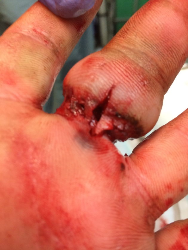 After removal of the ring, this macerated, secondary injury was discovered.  A small iatrogenic laceration from the ring cutter was unavoidable given the profound edema.