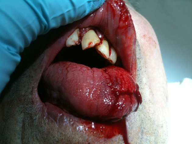 This patient sustained several Ellis III type tooth fractures and a tongue laceration after a fall.