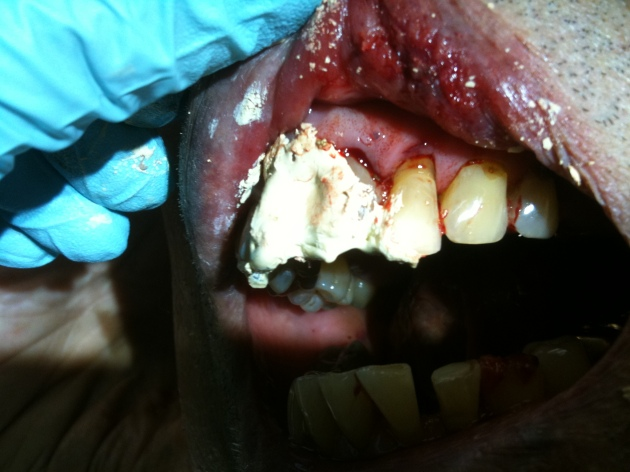 I used cement to cover the exposed pulp and dentin for comfort prior to this patient's dental follow up.  The use of infraorbital nerve blocks bilaterally helped him to tolerate the procedure better.
