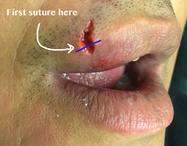 The first suture placed should approximate the margins of the vermillion-cutaneous border.