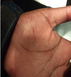 Look ma, no scar! Three month outcome in a hand laceration repaired with vicryl rapide. Courtesy Dr. Cena Tejani.
