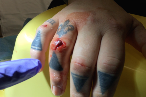 A small laceration over the extensor surface of the  proximal interphalangeal joint.  What is the concern with an injury like this?