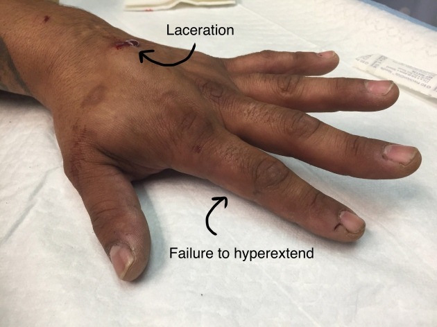 hyperextension test